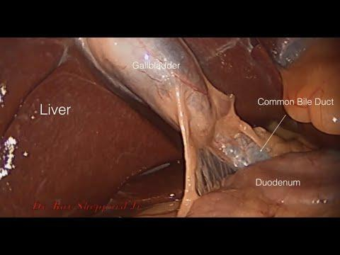 Anatomy Visualized During Gallbladder Surgery