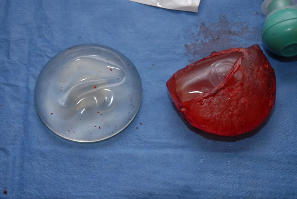 intact encapsulated implant