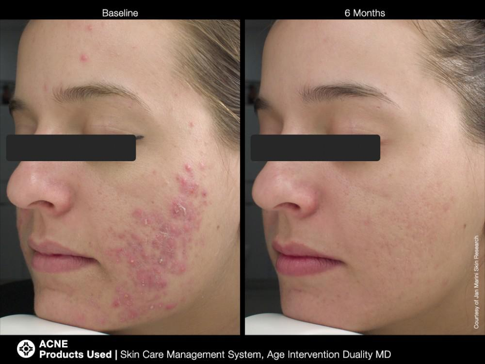 Acne - Before & After Jan Marini