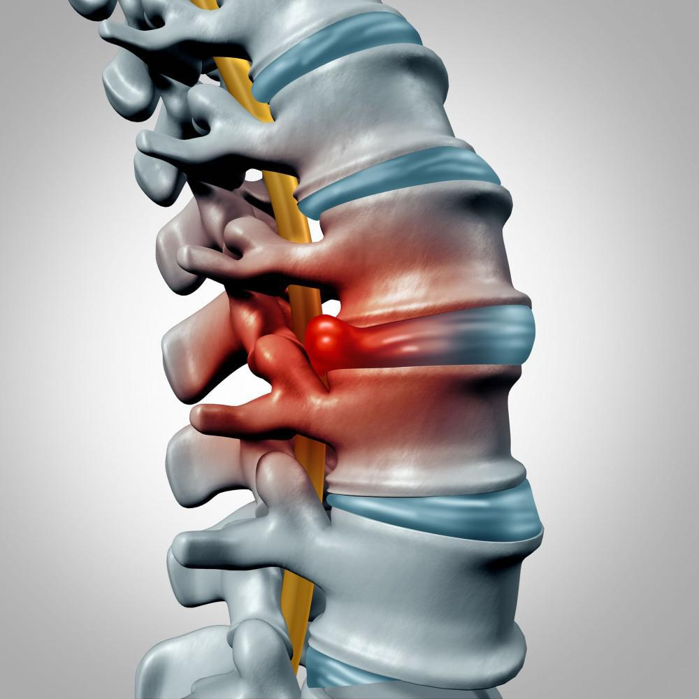How to Naturally Improve Back Pain and Herniated Discs