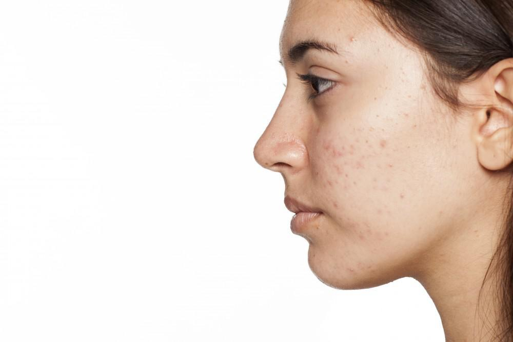 You Don't Have to Live with Acne Scars: Try Microdermabrasion: Michael K.  Obeng, MD: Med Spa
