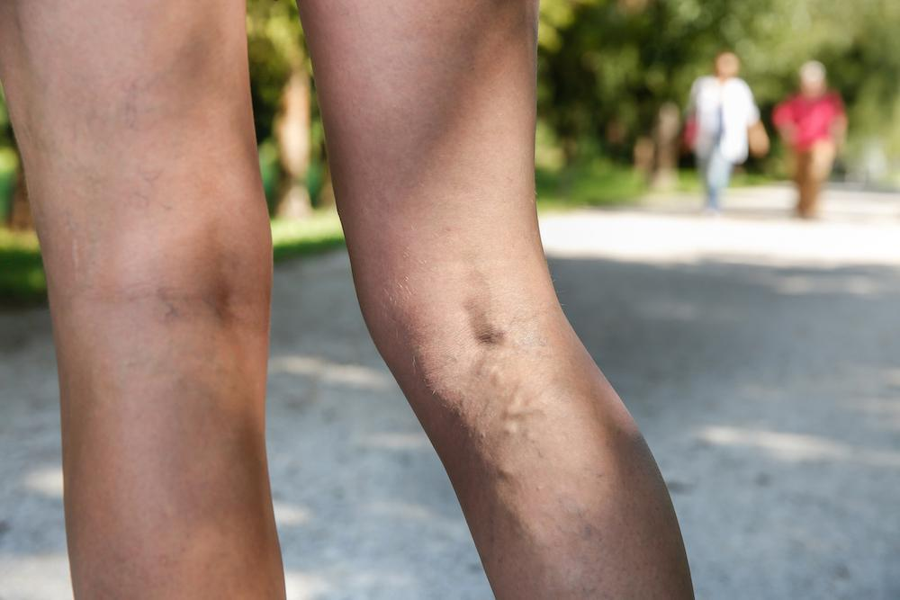 Boosting confidence in your appearance is a good reason to get these veins treated, but it's not the only reason you should c