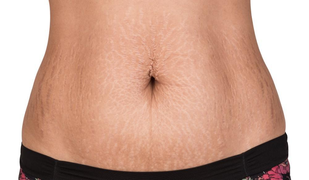 Cheap Deals On  Stretch Marks