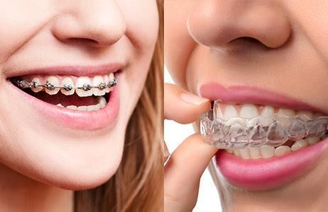 Traditional Braces and Invisalign