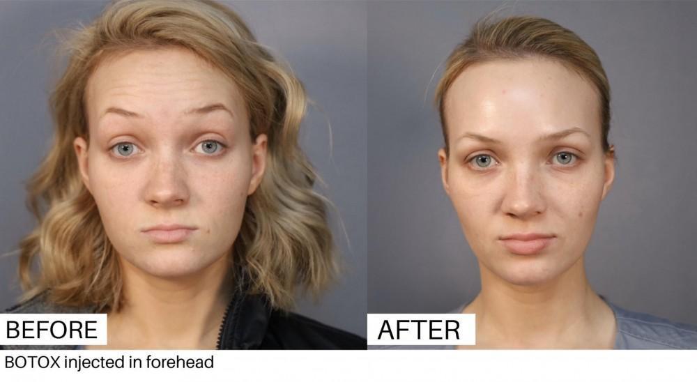 Botox North Austin Specials