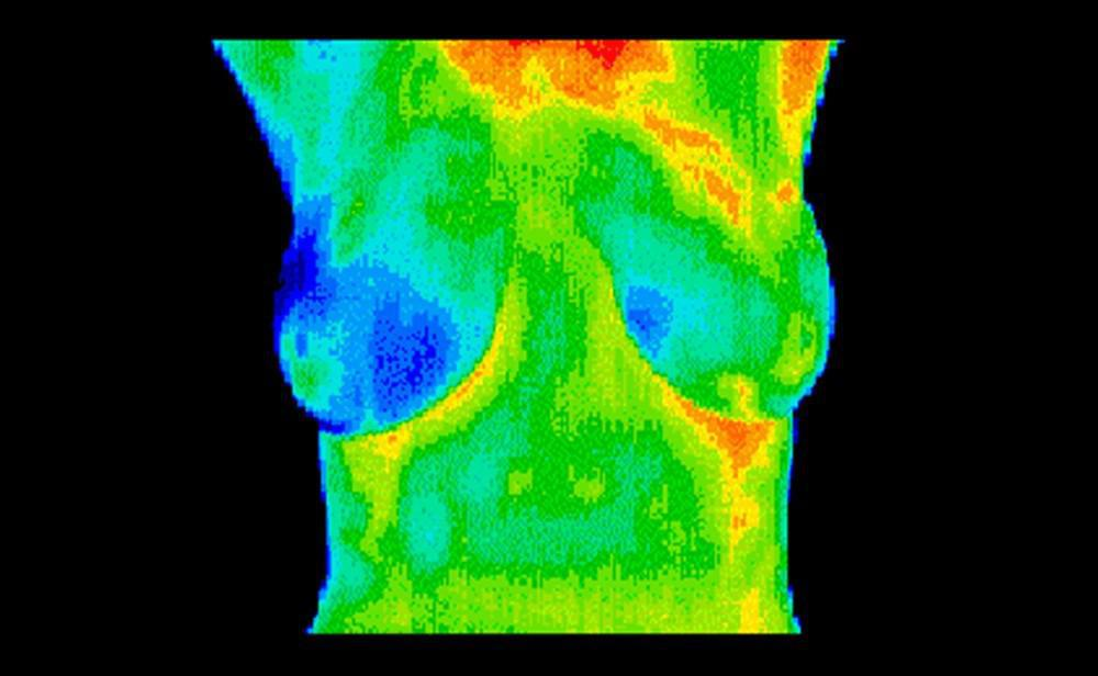 Example breast thermography scan