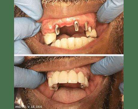 Le Chabot Dental: Dental Implant Specialists: San Leandro, CA