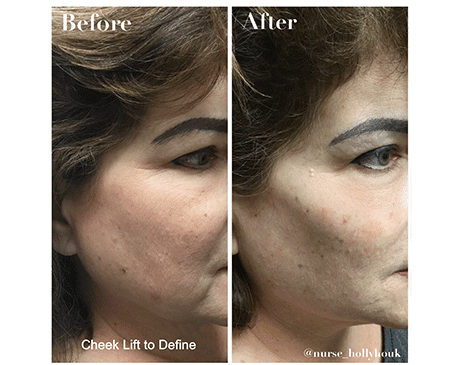Gallery image about Cheek & Chin Fillers
