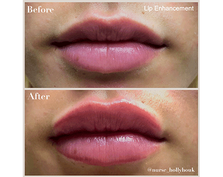 Gallery image about Lip Fillers