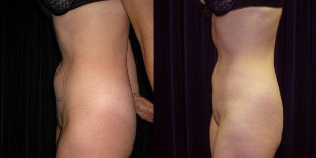 Gallery image about SmartLipo Gallery
