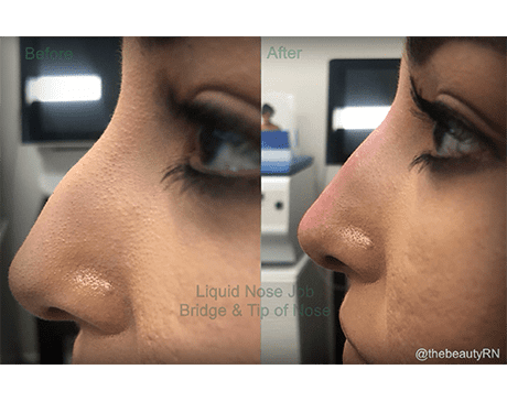 Gallery image about Liquid Nose Filler
