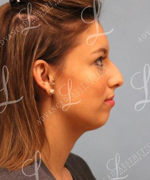 Gallery image about Rhinoplasty