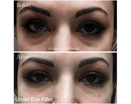 Gallery image about Under-Eye Fillers