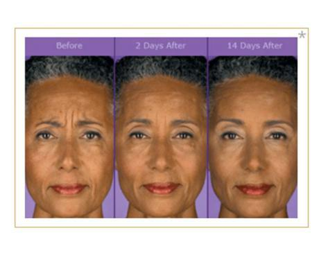 Gallery image about Botox Injections