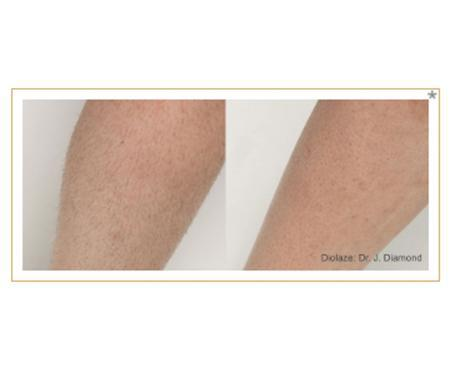 Gallery image about Diolaze Laser Hair Removal