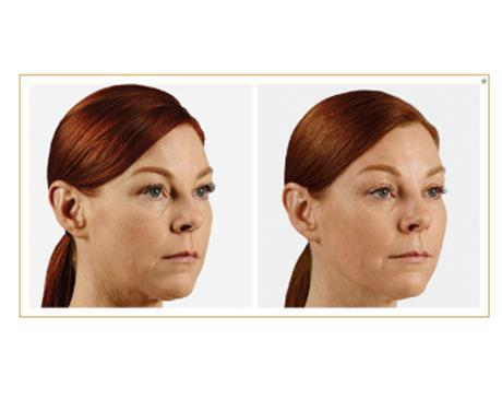 Gallery image about Juvederm Anti-Aging Fillers