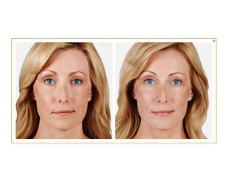Gallery image about Juvederm Lip Fillers
