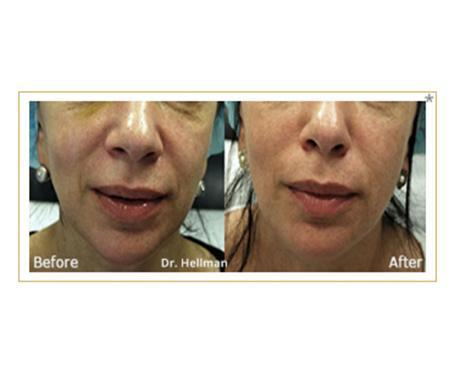 Gallery image about Morpheus8 Microneedling