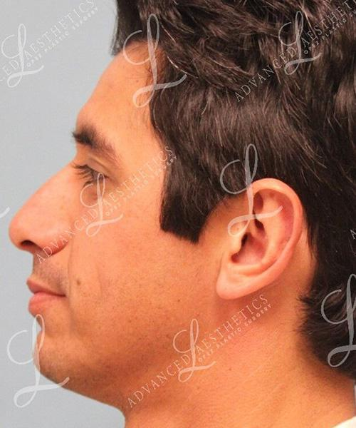 Gallery image about Otoplasty