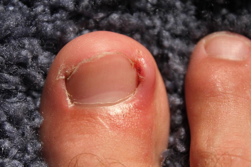 Is an ingrown toenail making your life miserable? Call us today at 212-750-8344 or make an appointment at Precision Footcare