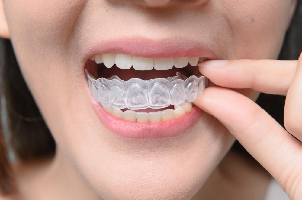 To learn more about Invisalign and whether you are a candidate, make an appointment at Smile Boutique. Call us at (914) 664-7