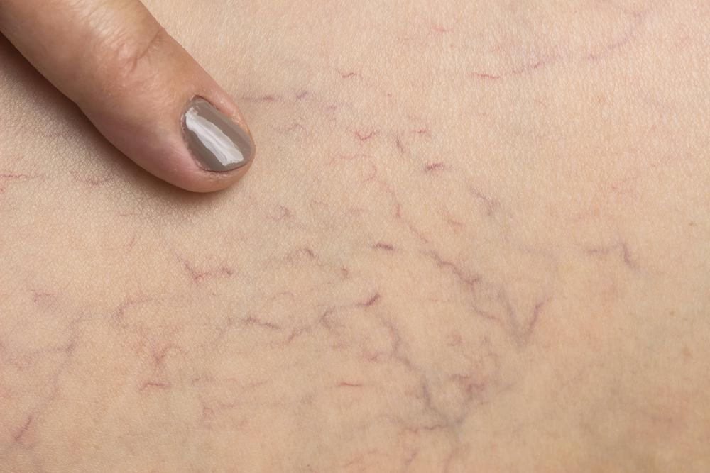 If you're tired of having spider veins that negatively impact your appearance, we can help. Call Frontier Medical care at 718