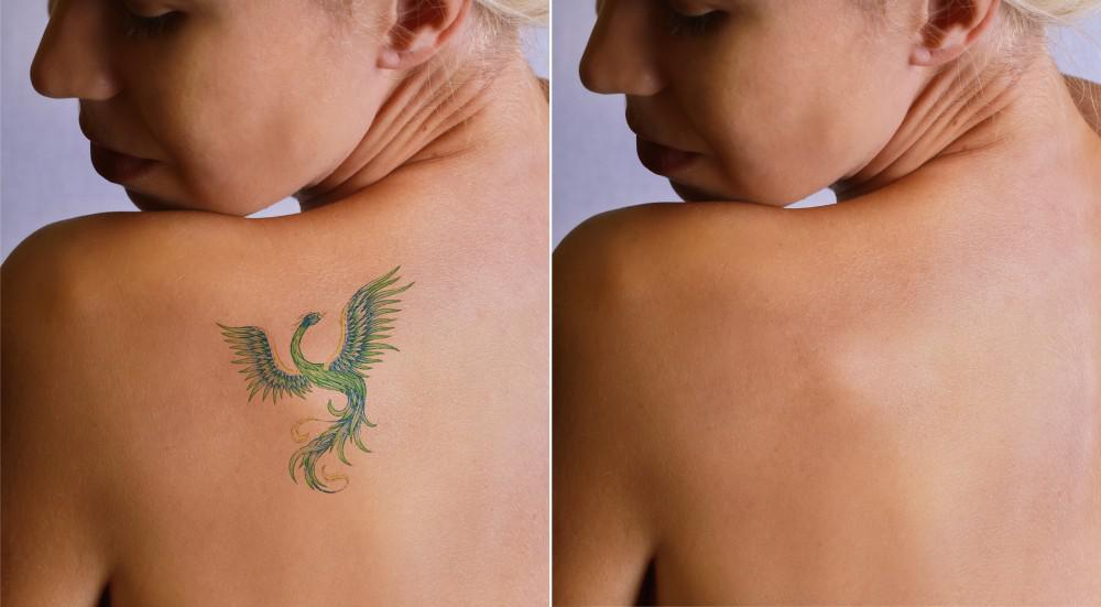 Tattoo Removal Works