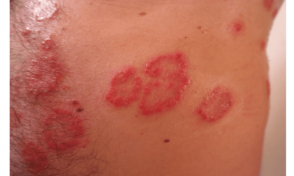 plaque psoriasis is what)