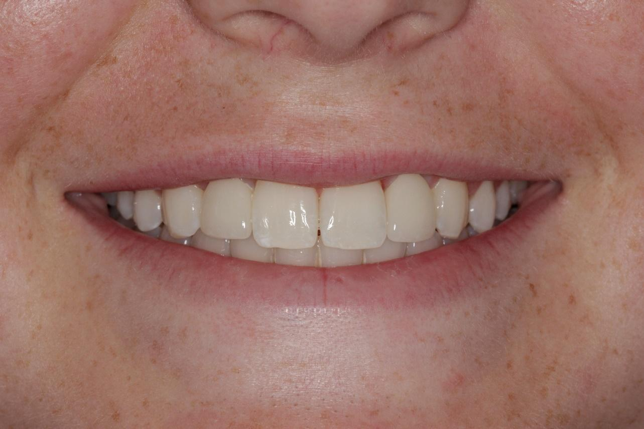 Gallery image about Smile Makeover Gallery