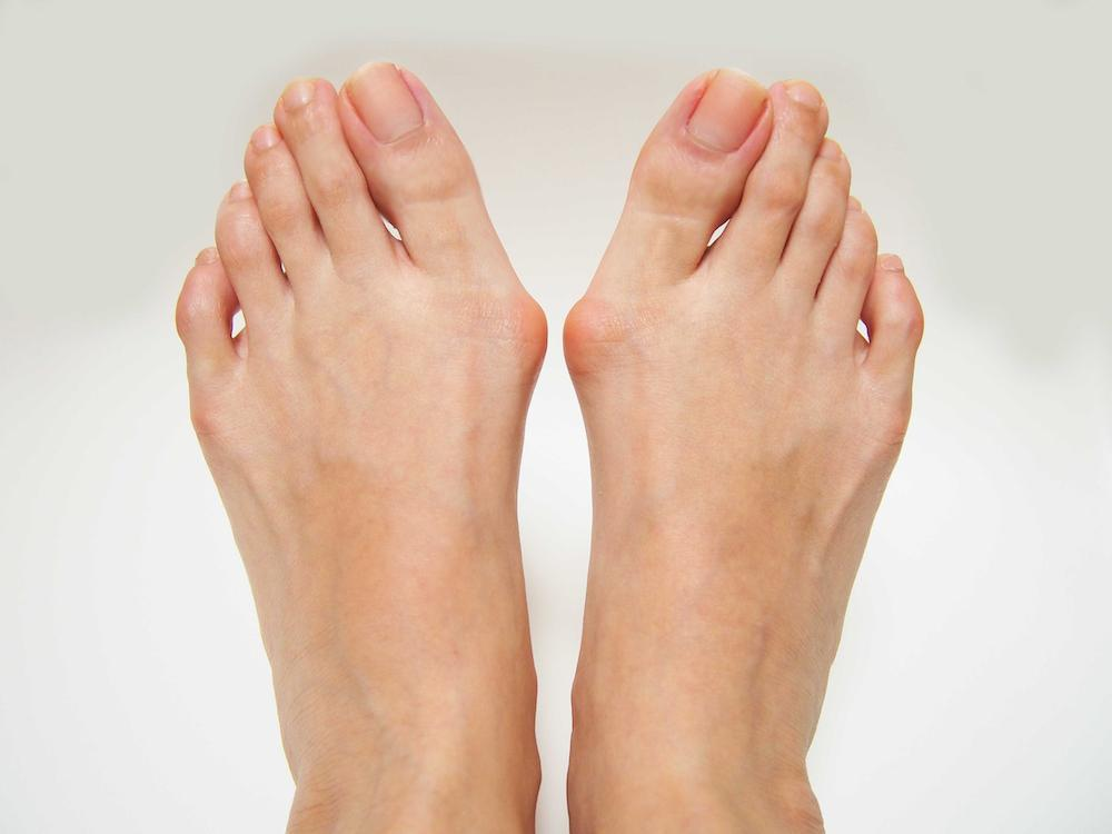 If you have a bunion, contact our office in Hamilton, New Jersey, at 609-416-9046 or schedule an appointment online.