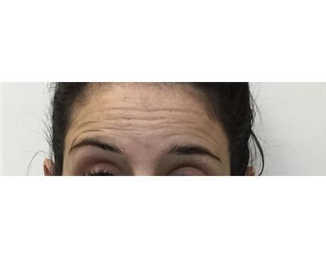 Botox & Dysport Specialist - Park Ridge, IL: CN Medical