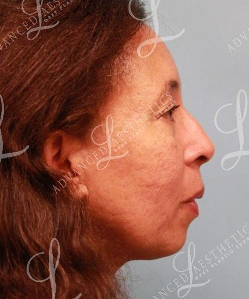 Gallery image about chin implants