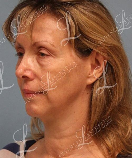 Gallery image about Lower Blepharoplasty