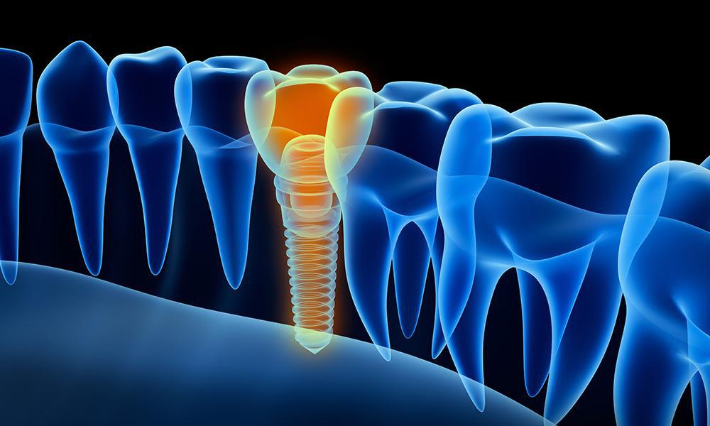 dental implant tooth xray view