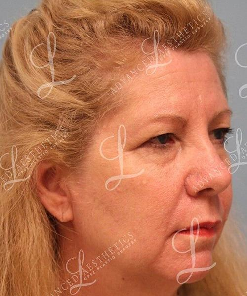Gallery image about Upper Blepharoplasty & Browlift