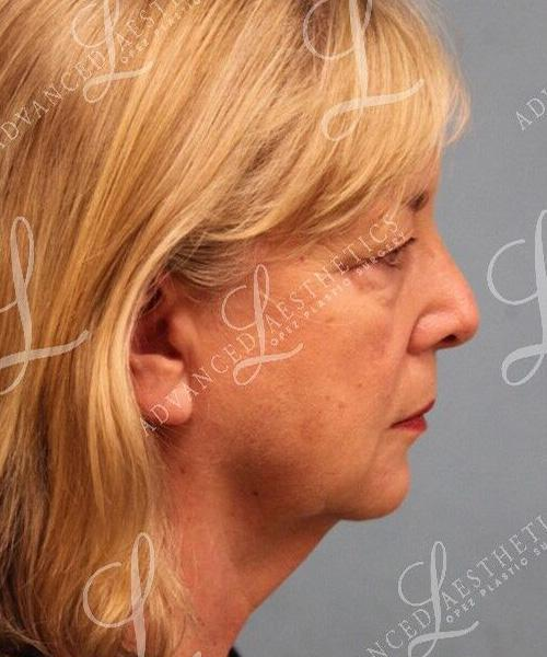 Gallery image about Upper & Lower Blepharoplasty