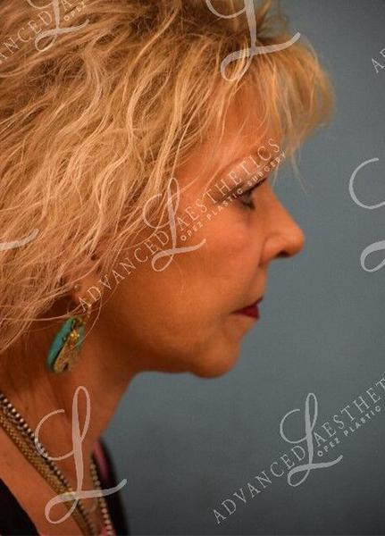 Gallery image about FACELIFT, FAT GRAFTING, TCA PEEL