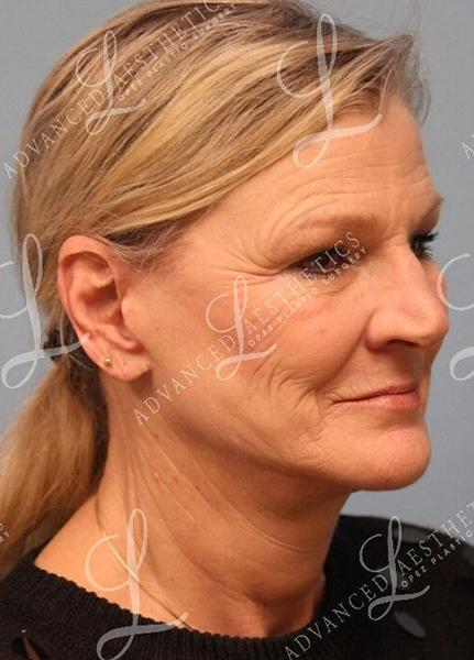 Gallery image about FACELIFT & FACEGRAFTING