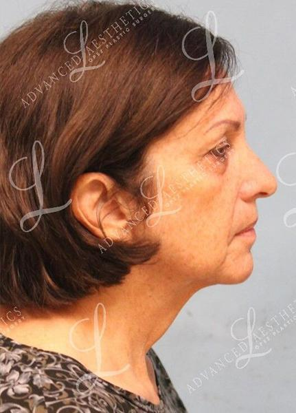 Gallery image about FACELIFT, BROWLIFT & BLEPHAROPLASTY