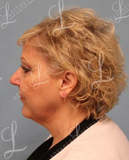Gallery image about Facelift, Fat Grafting & Blepharoplasty