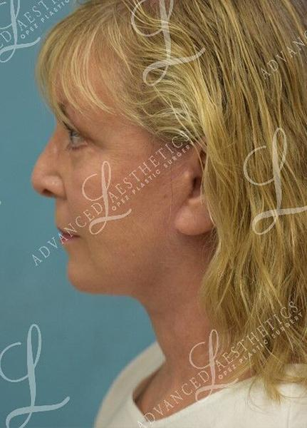 Gallery image about Facelift, Blepharoplasty & TCA Peel