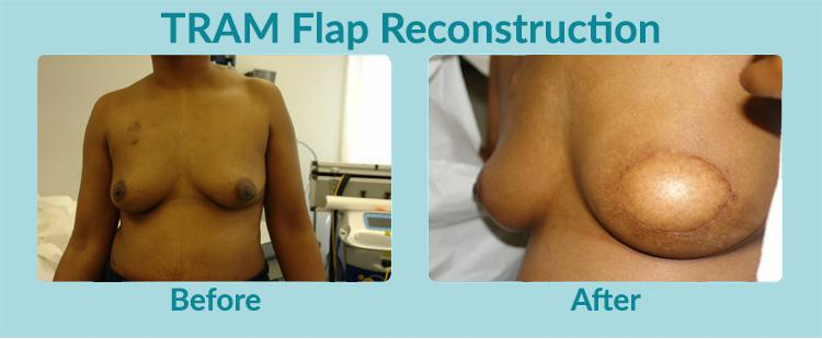 Gallery image about Before & After – Breast Cancer Reconstruction