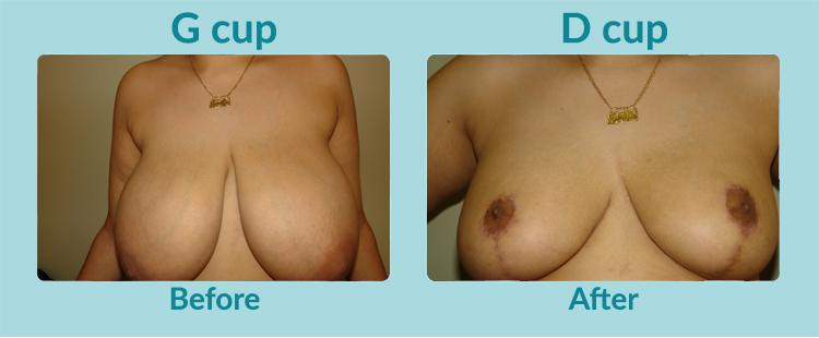 Gallery image about Before & After – Breast Reduction