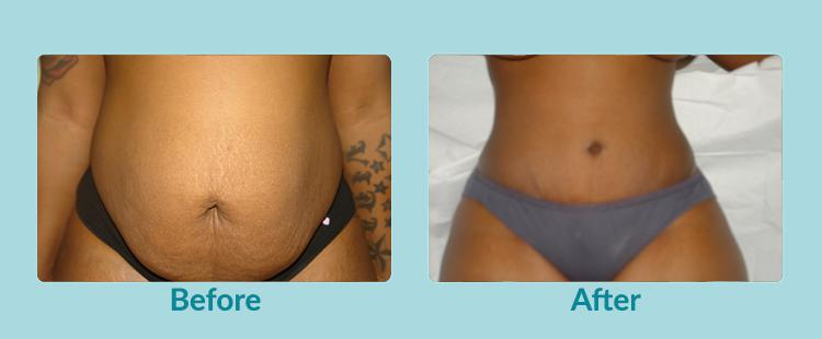 Gallery image about Before & After – Tummytuck