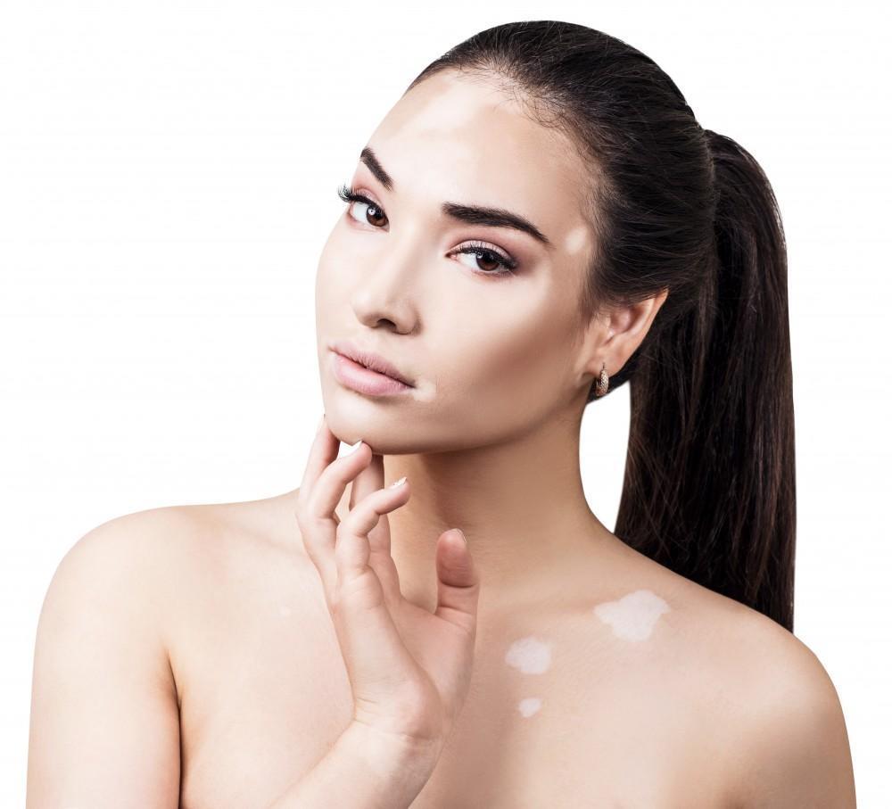 Myths And Facts About Vitiligo Allen A Flood Md Dermatologist