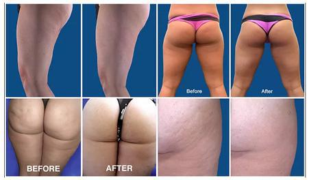 Gallery image about cellulite reduction
