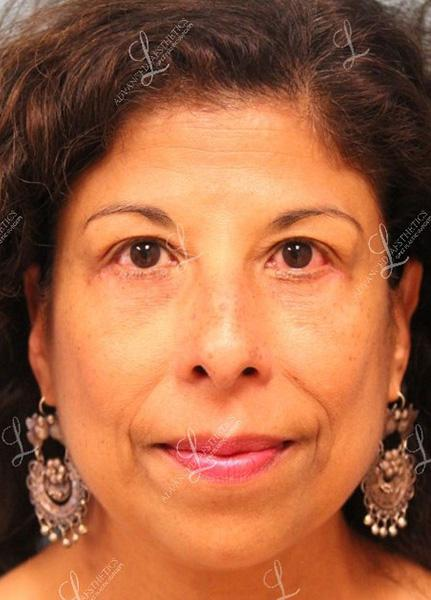 Gallery image about Lower Eyelid Lift