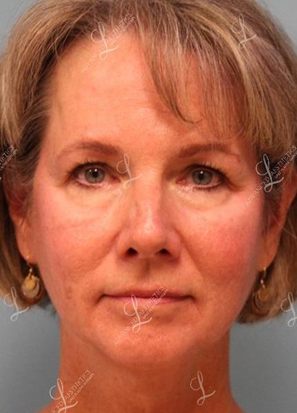 Gallery image about Upper & Lower Eyelid Surgery