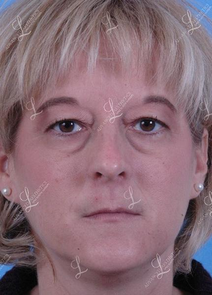 Gallery image about Browlift & upper & lower eyelid lift