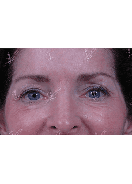 Gallery image about Upper Blepharoplasty